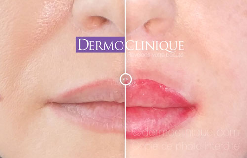 Détails : maquillage permanent Dermoclinique